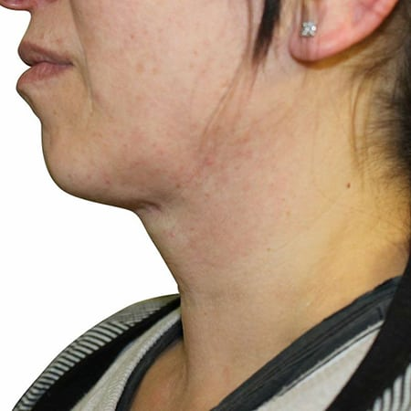 neck-lift-after